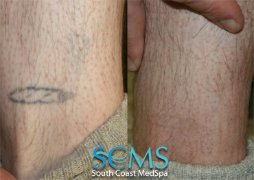 Laser Tattoo Removal - Leg
