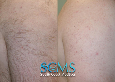 Laser Hair Removal - Arm and Back