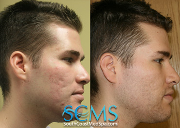 Active FX Acne Scar Removal