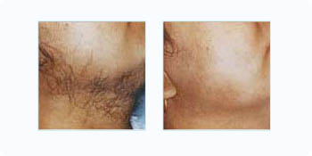 laser hair removal face