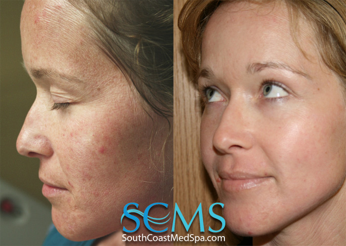 Laser Acne Scar Removal San Diego Los Angeles South