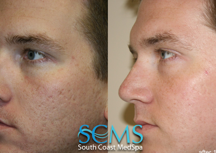 Laser Acne Scar Removal and Skin Resurfacing Gallery - South Coast ... 3b9c9b720d6