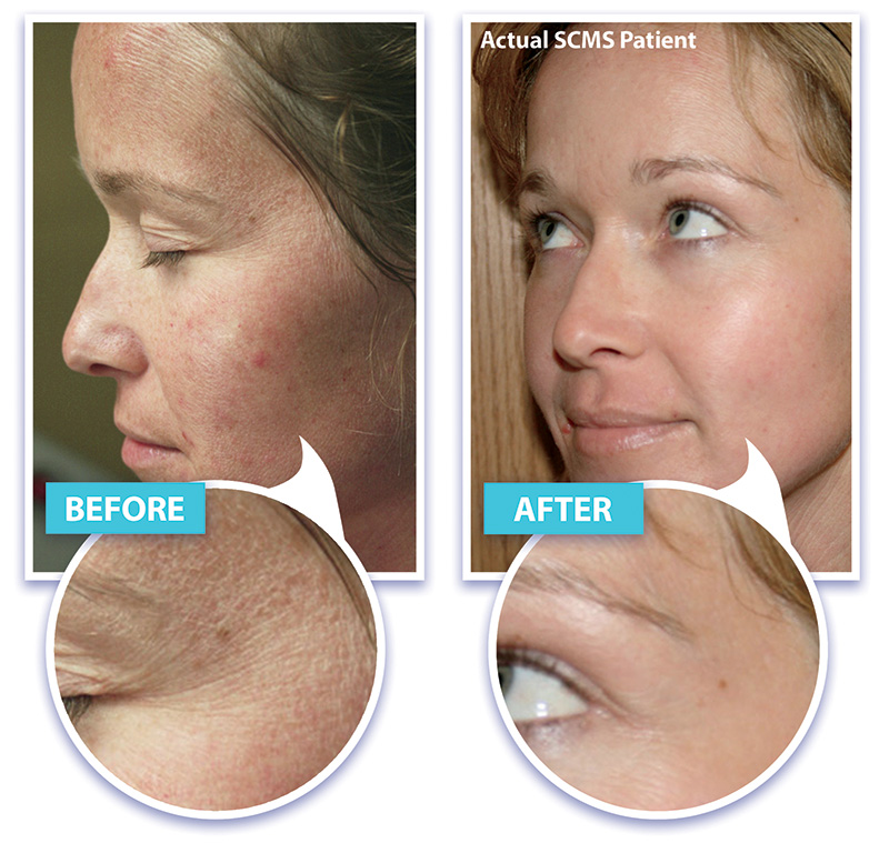 Laser Skin Rejuvenation, wrinkle removal, skin tightening with laser