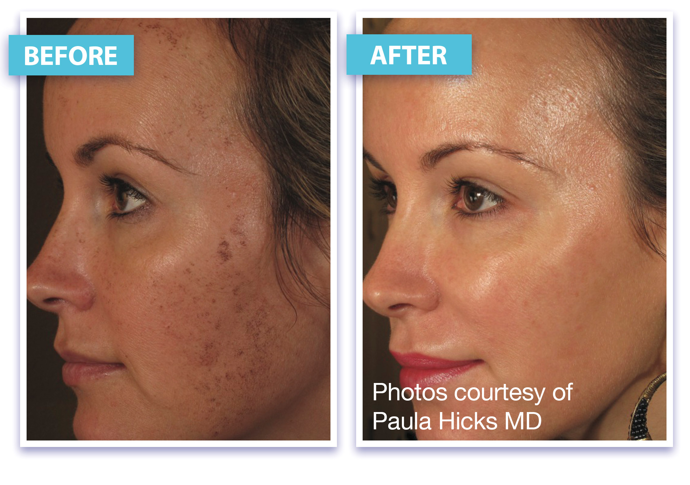 Before and After Micro Laser Peel Brownspots