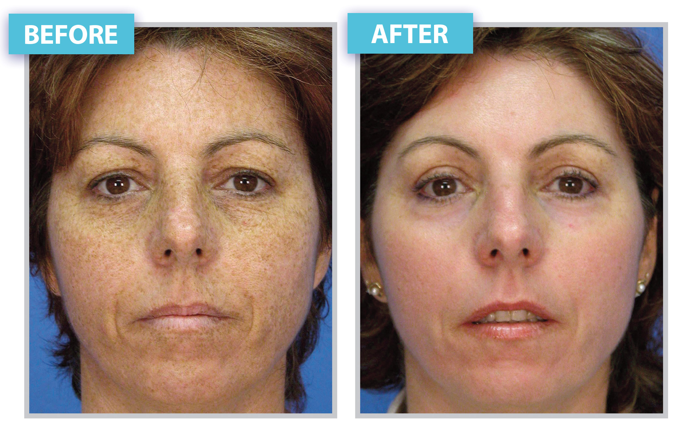 Before and After Laser Skin Rejuvenation