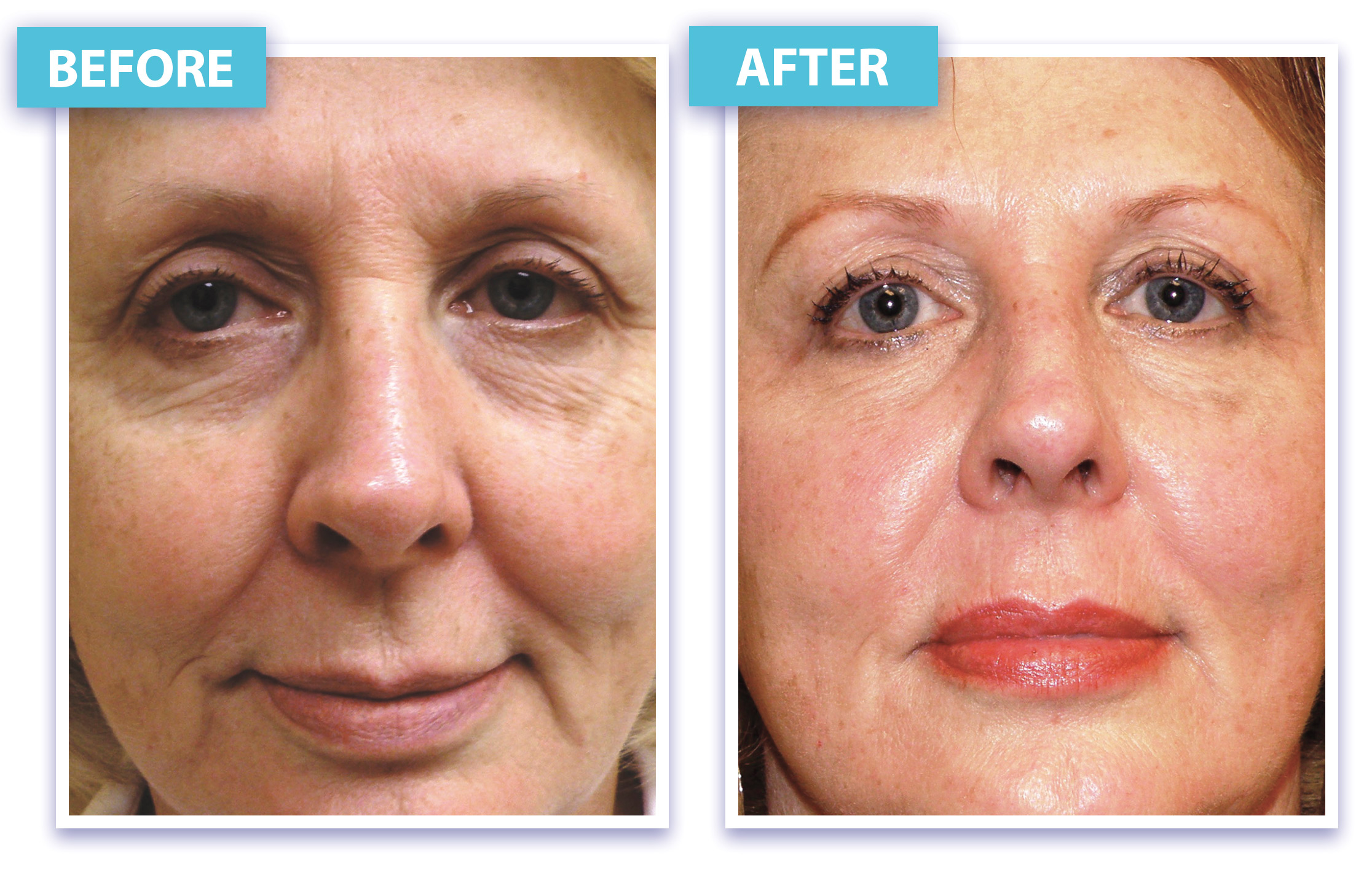 Laser Skin Rejuvenation and Wrinkle Removal in Los Angeles ...