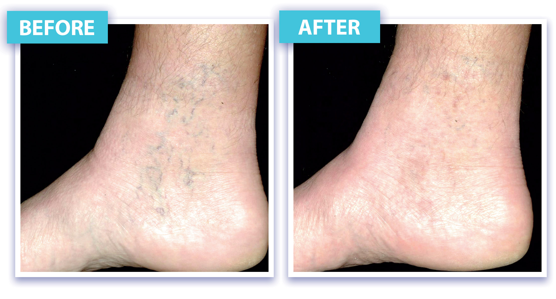 Before and After Laser Vein Removal