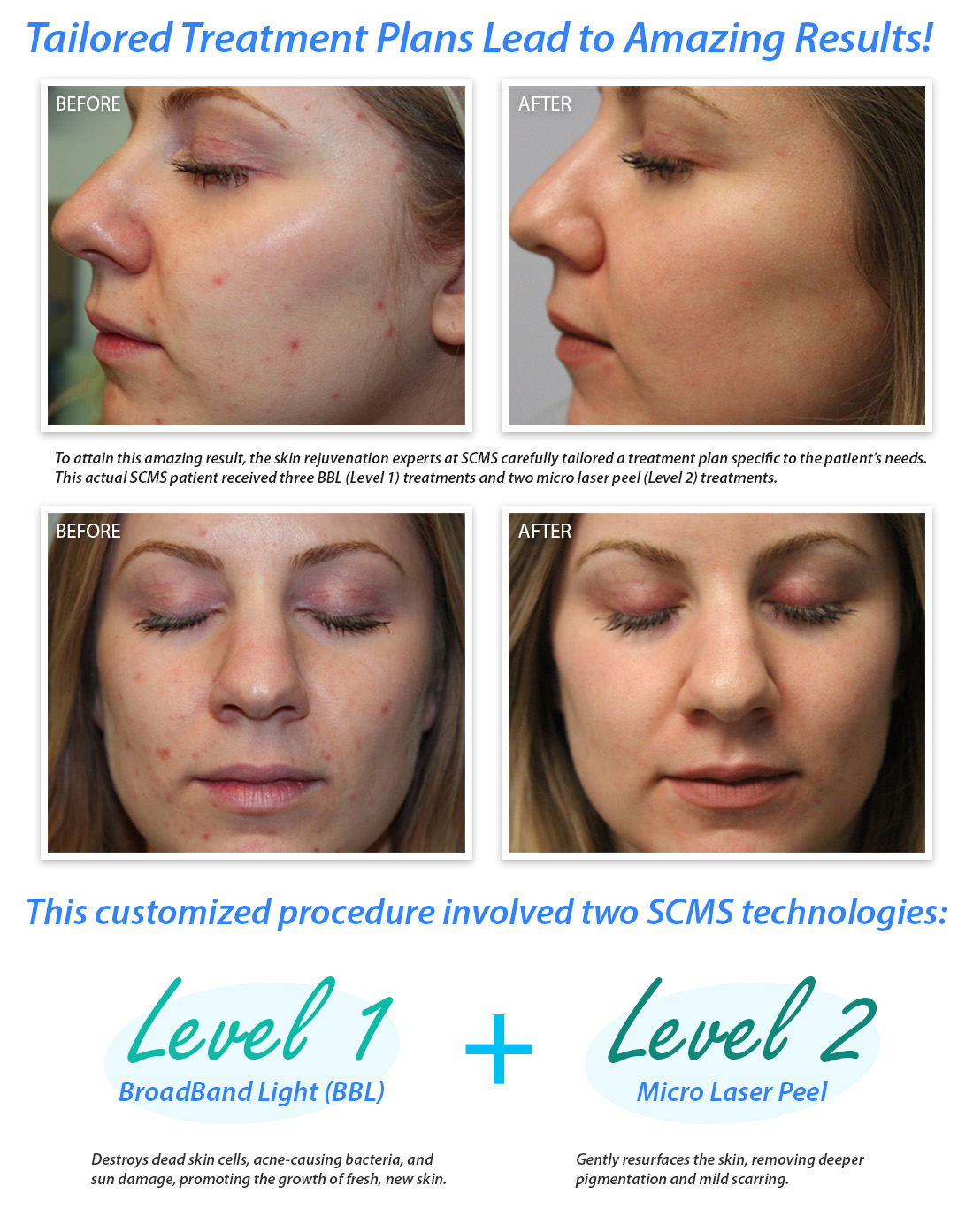 Before and After BBL Microlaserpeel