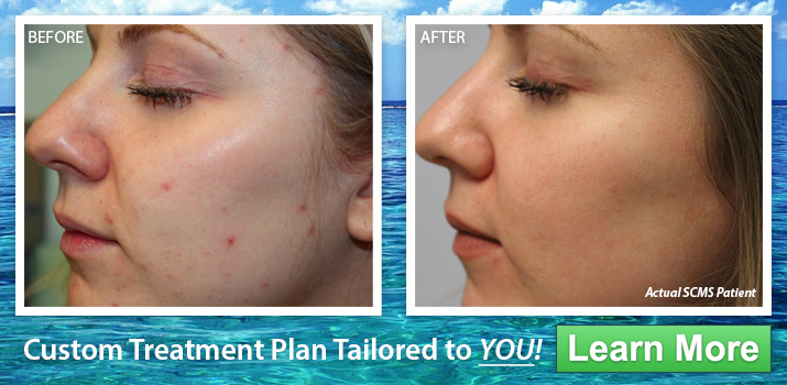 forever young BBL plus micro laser peel