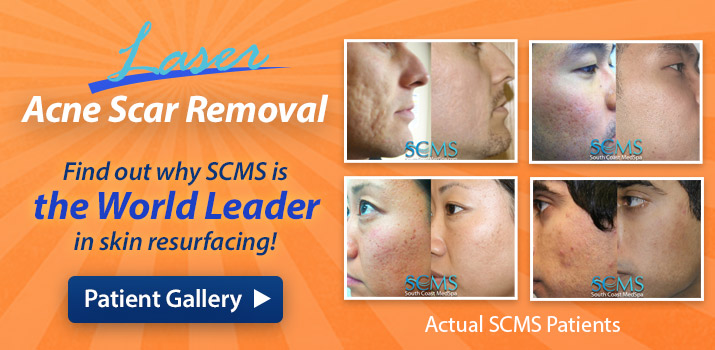 Hair Removal, Anti-aging skin rejuvenation, Acne scar removal, and