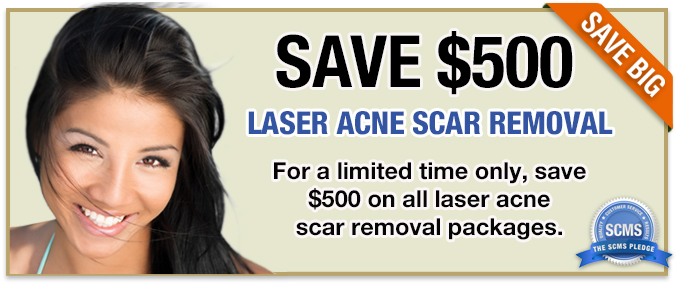 Laser Acne Scar Removal - Save $500 on packages />               <br />               <br/>               <br />                         <p style=