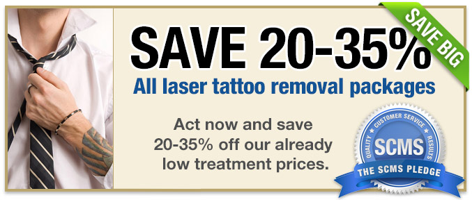 Tattoo removal coupons - All the theme parks in orlando florida