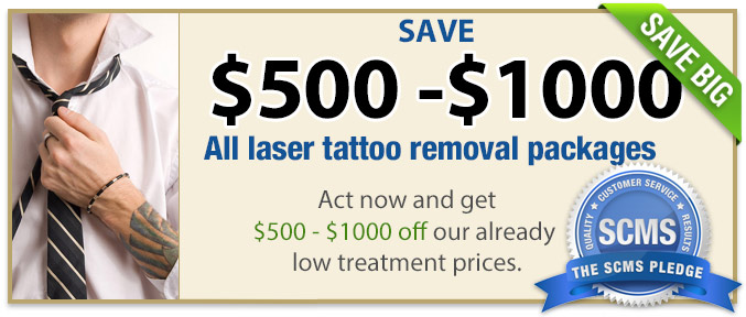 Current Specials For Laser Tattoo Removal South Coast Medspa