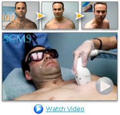 Dave Singer Hair Removal Video