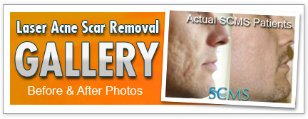 laser skin resurfacing gallery