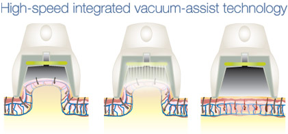 High-Speed Vacuum Assist Technology