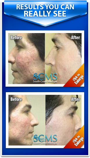 Laser skin resurfacing photos - before and after laser acne scar removal