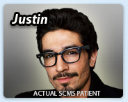 Laser skin resurfacing success story - Justin