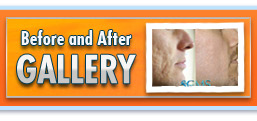 Acne Scar Removal Before and After Gallery