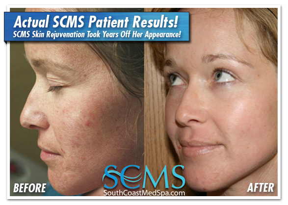 Laser Skin Rejuvenation Patient with brown spot removal