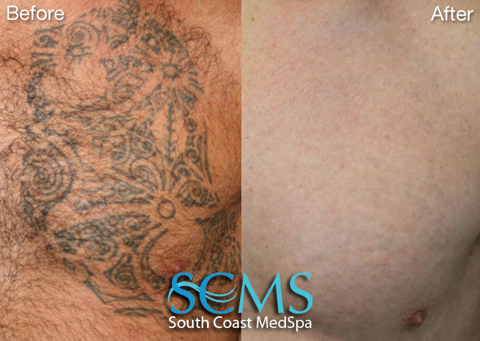 My acne came back laser tattoo removal san diego remove for How to get rid of a tattoo at home