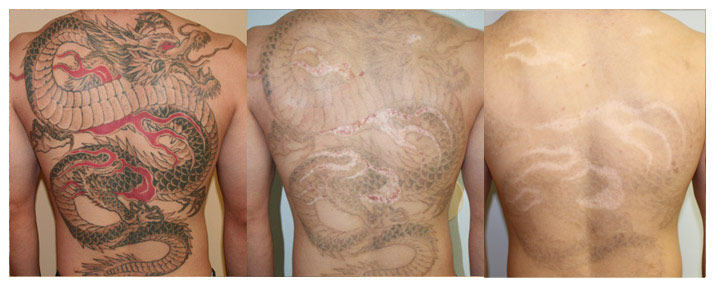 ... brisbane tattoo removal laser tattoo removal brisbane laser tattoo
