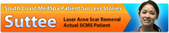 Laser skin resurfacing success story - laser acne scar removal patient