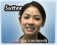 Laser skin resurfacing success story - Suttee