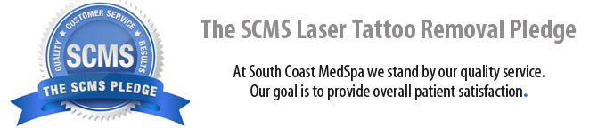 SCMS laser tattoo removal guarantee