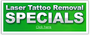 Laser Tattoo Removal Specials