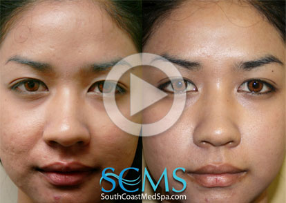 Laser Acne Scar Removal Los Angeles Laser Acne Scar