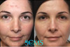 Amazing Laser Acne Scar + Skin Rejuvenation Results