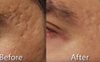 Great Acne Scar Removal Results on Temples