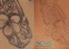 Laser Tattoo Removal with PFD Patch and Results!