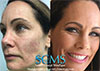Michelles Journey to Beautiful Skin